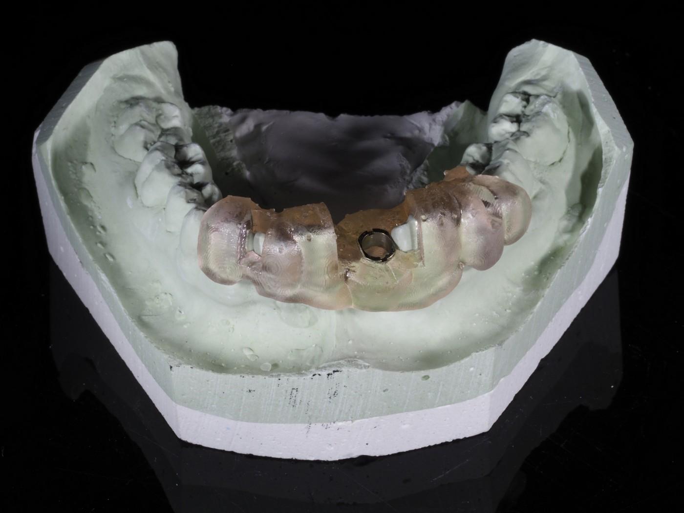 Implanturi ghidate chirurgical in clinica IMPLANTOART