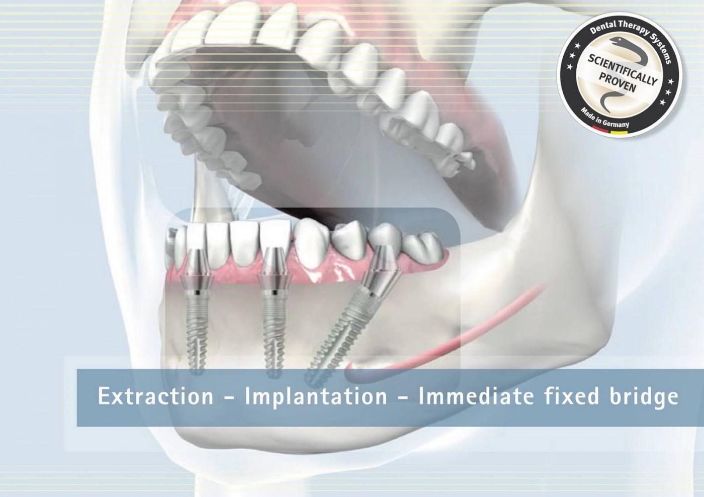 Proteza dentara fixa Galati - Clinica IMPLANTOART